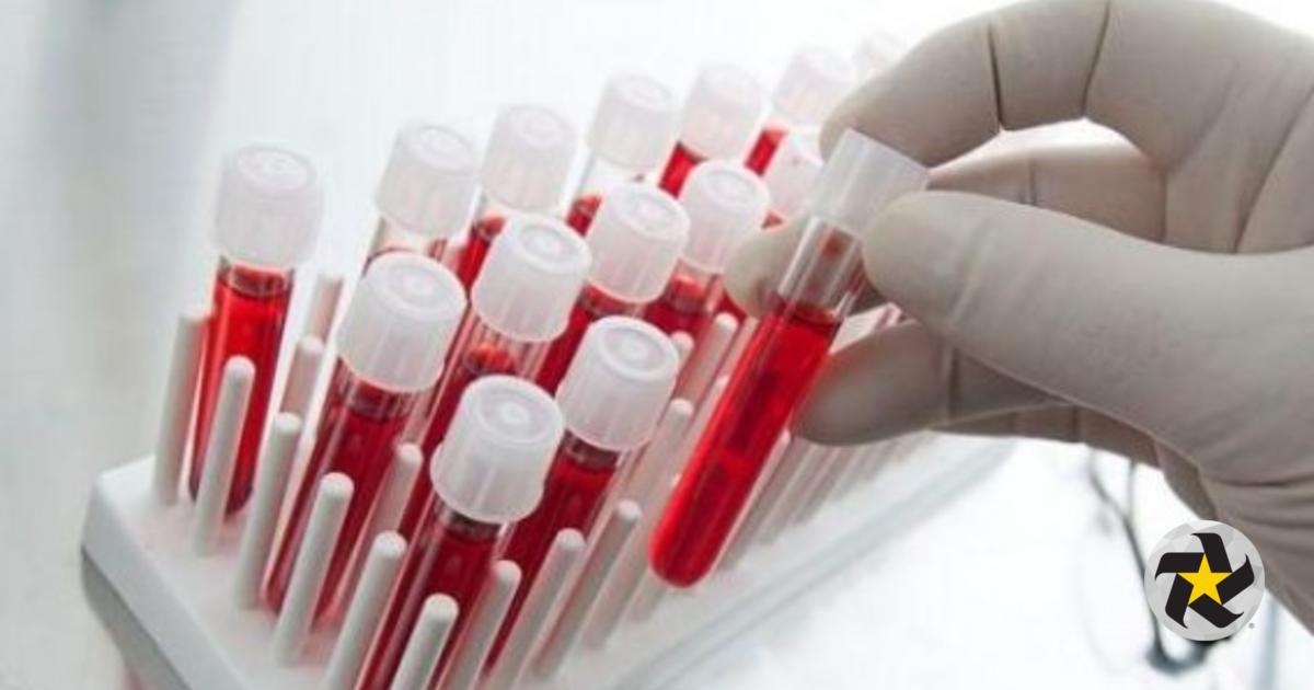 Resultado de imagen de Científicos afirman estar cerca de detectar fatiga crónica mediante prueba de sangre